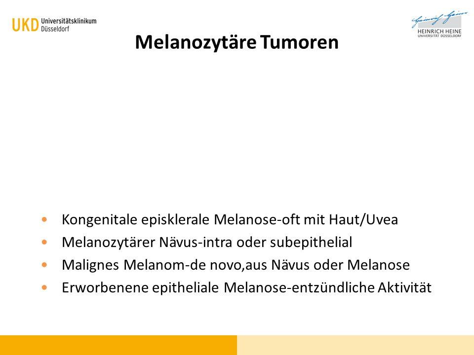 Melanozytäre Tumoren Kongenitale episklerale Melanose-oft mit Haut/Uvea Melanozytärer Nävus-intra oder subepithelial Malignes Melanom-de novo,aus Nävu