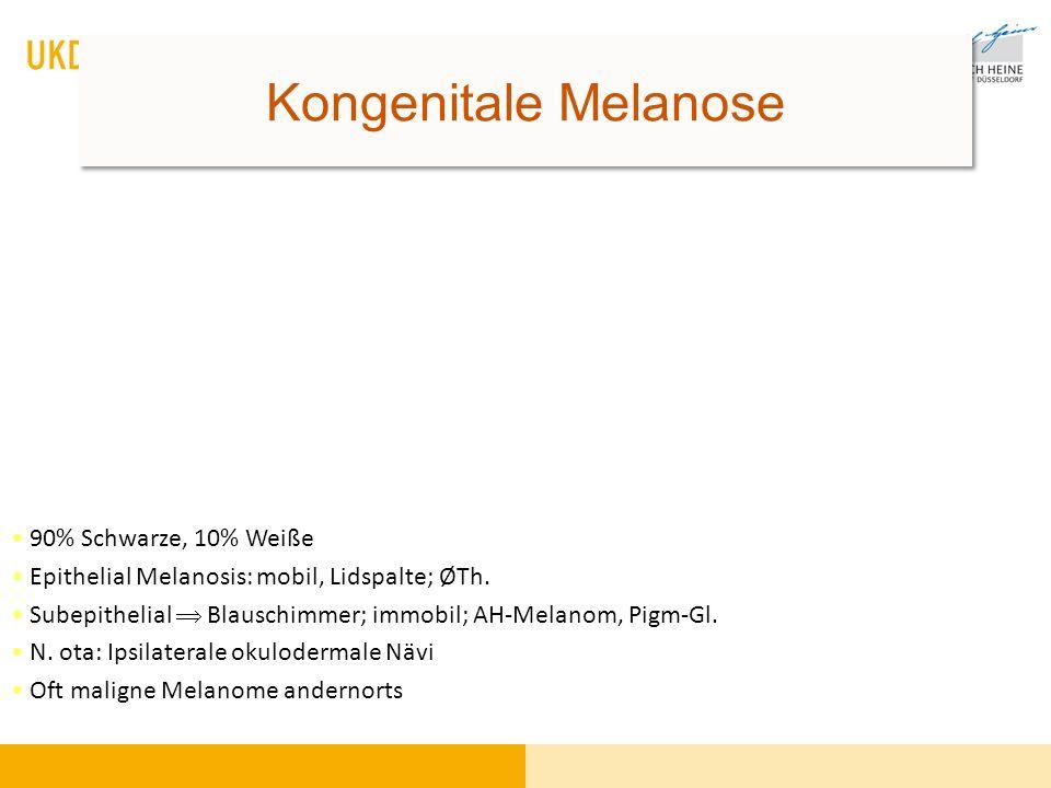 90% Schwarze, 10% Weiße Epithelial Melanosis: mobil, Lidspalte; ØTh. Subepithelial Blauschimmer; immobil; AH-Melanom, Pigm-Gl. N. ota: Ipsilaterale ok