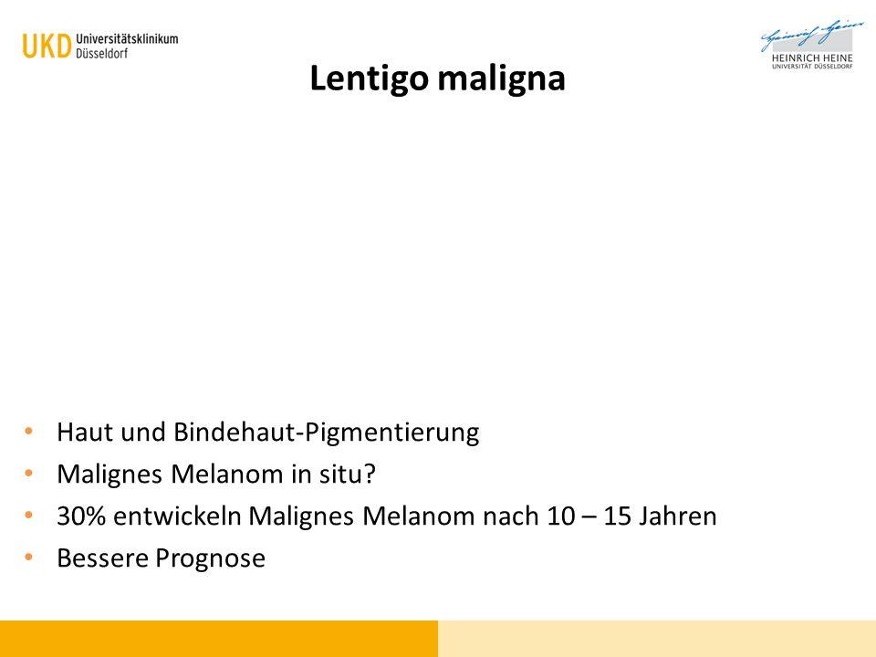 Lentigo maligna Haut und Bindehaut-Pigmentierung Malignes Melanom in situ? 30% entwickeln Malignes Melanom nach 10 – 15 Jahren Bessere Prognose