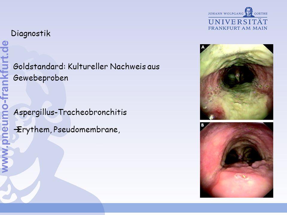 Diagnostik Goldstandard: Kultureller Nachweis aus Gewebeproben Aspergillus-Tracheobronchitis Erythem, Pseudomembrane,