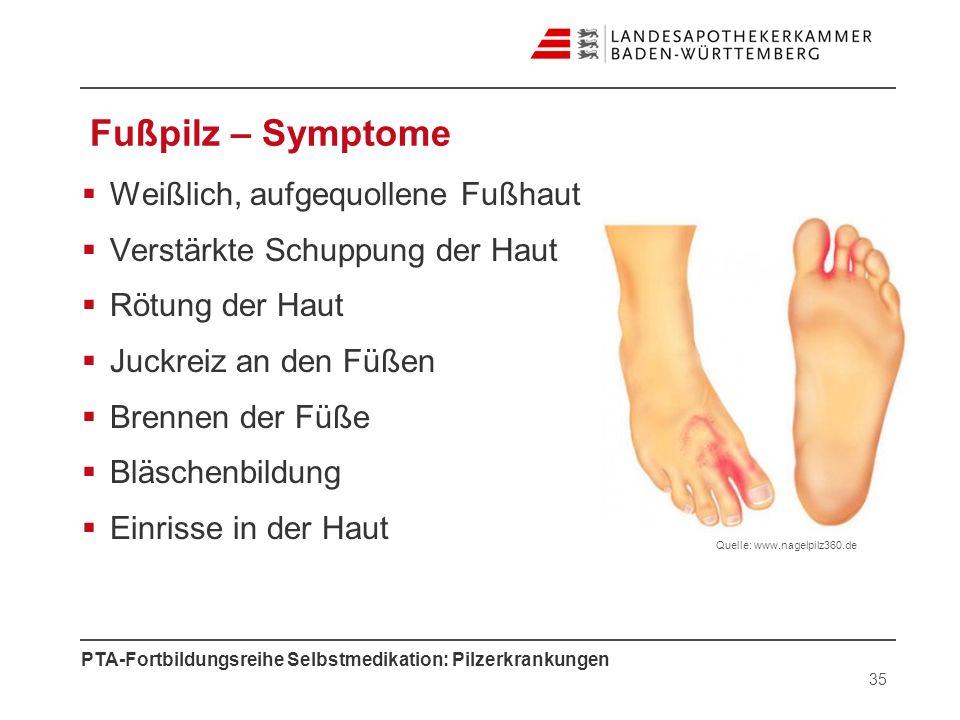 PTA-Fortbildungsreihe Selbstmedikation: Pilzerkrankungen Fußpilz – Symptome Weißlich, aufgequollene Fußhaut Verstärkte Schuppung der Haut Rötung der H