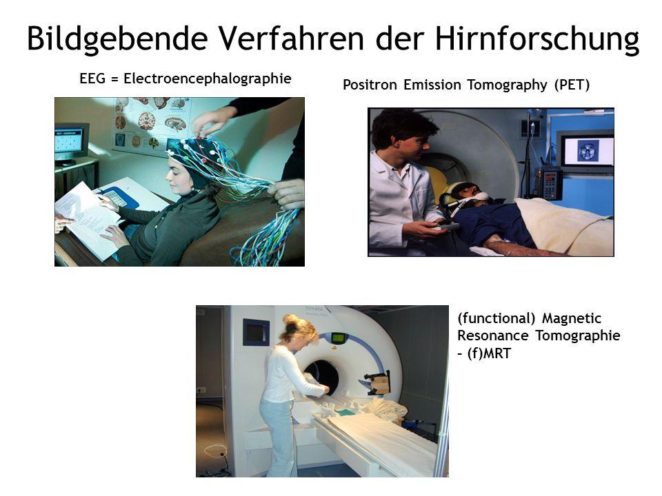 Positron Emission Tomography (PET) EEG = Electroencephalographie (functional) Magnetic Resonance Tomographie – (f)MRT Bildgebende Verfahren der Hirnfo