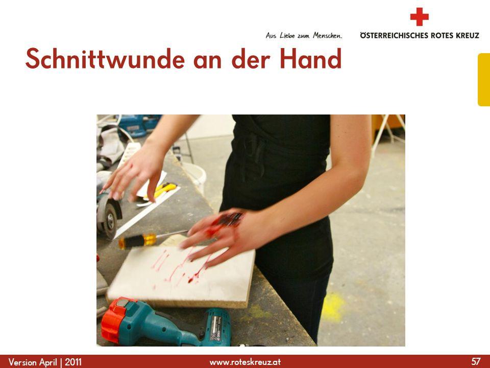 www.roteskreuz.at Version April | 2011 Schnittwunde an der Hand 57
