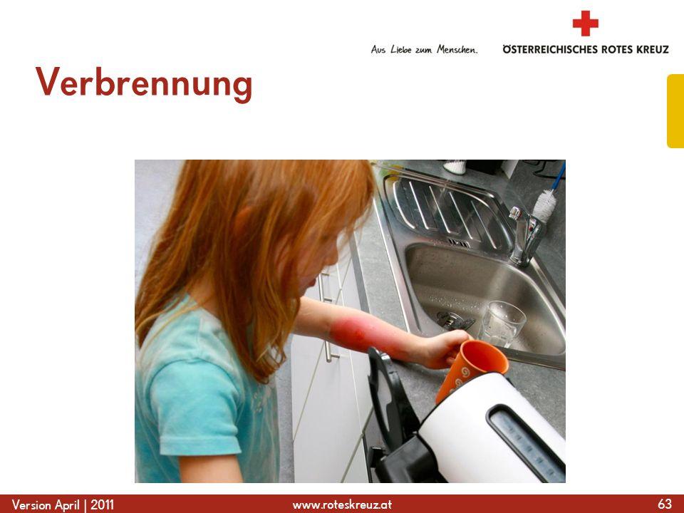 www.roteskreuz.at Version April | 2011 Verbrennung 63