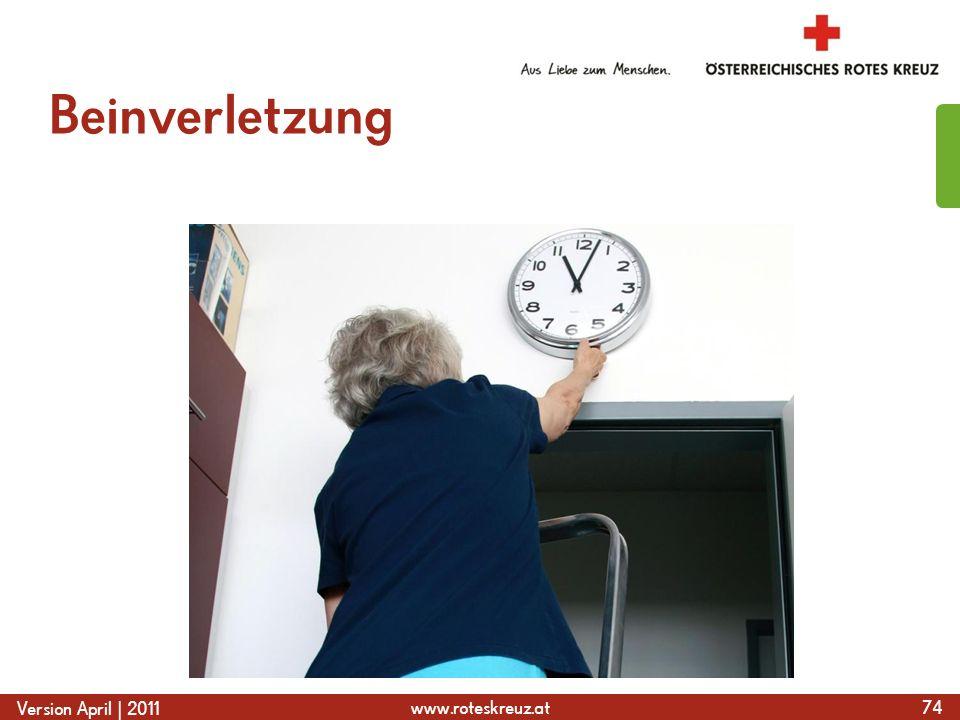 www.roteskreuz.at Version April | 2011 Beinverletzung 74
