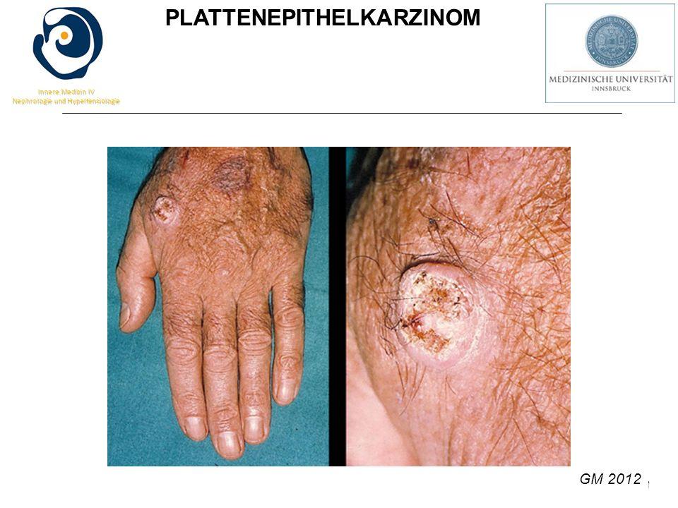 G.M. 2013 Innere Medizin IV Nephrologie und Hypertensiologie PLATTENEPITHELKARZINOM GM 2012