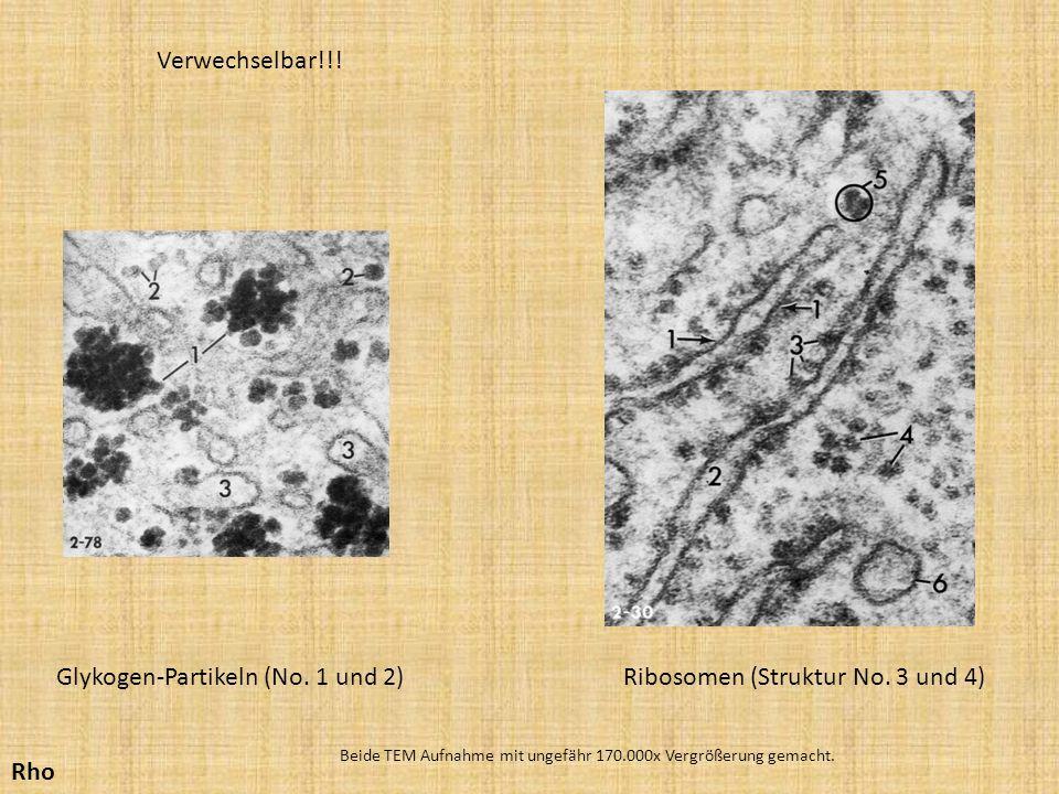Ribosomen (Struktur No. 3 und 4)Glykogen-Partikeln (No. 1 und 2) Beide TEM Aufnahme mit ungefähr 170.000x Vergrößerung gemacht. Verwechselbar!!! Rho