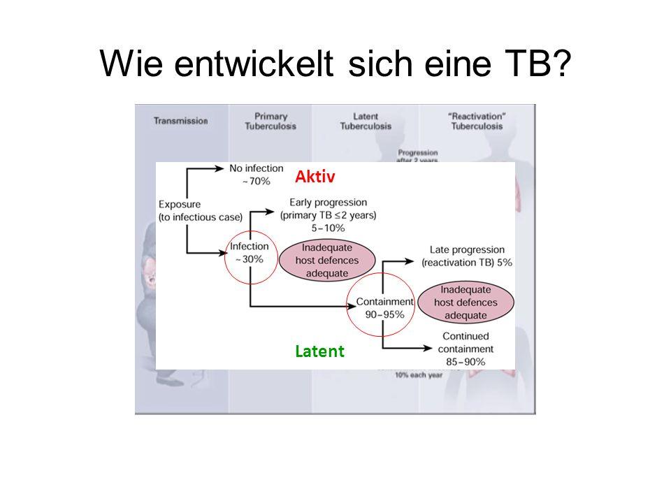 Wie entwickelt sich eine TB? Latent Aktiv