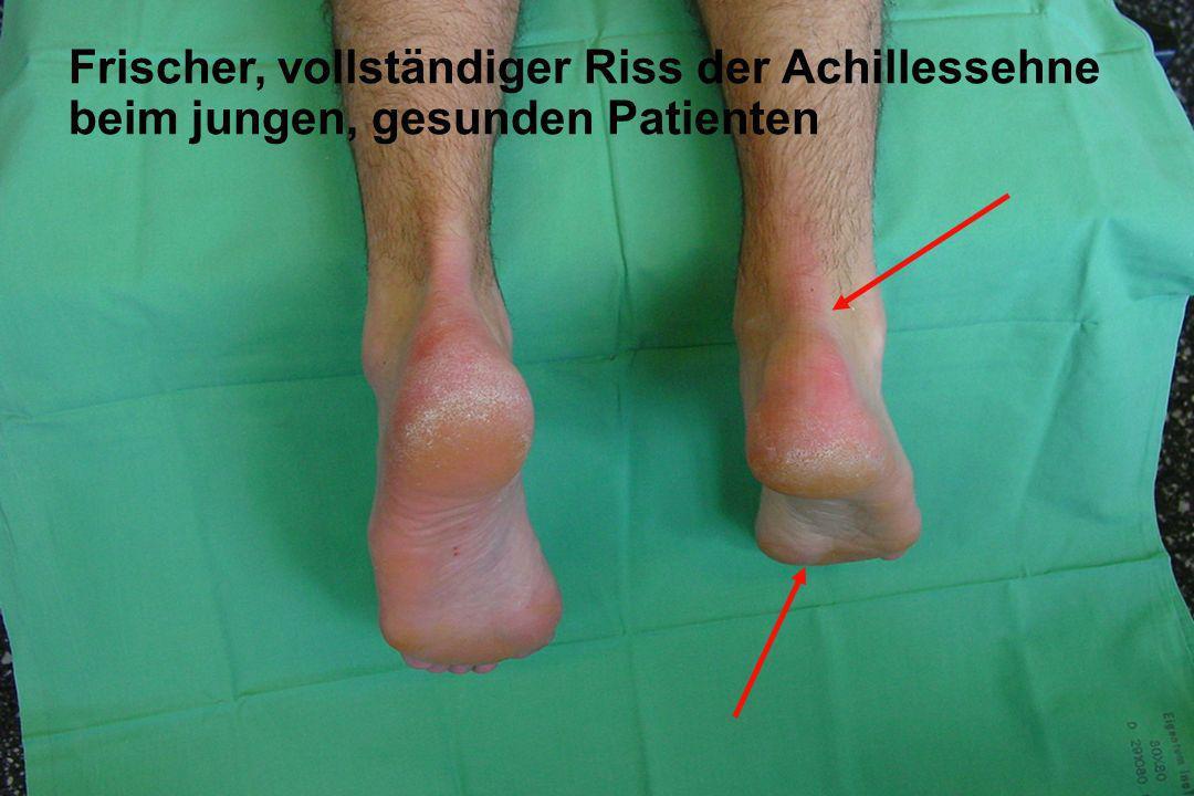 Achillessehnenruptur Frische, vollständige Ruptur der Achillessehne beim jungen, gesunden Patienten Frischer, vollständiger Riss der Achillessehne bei