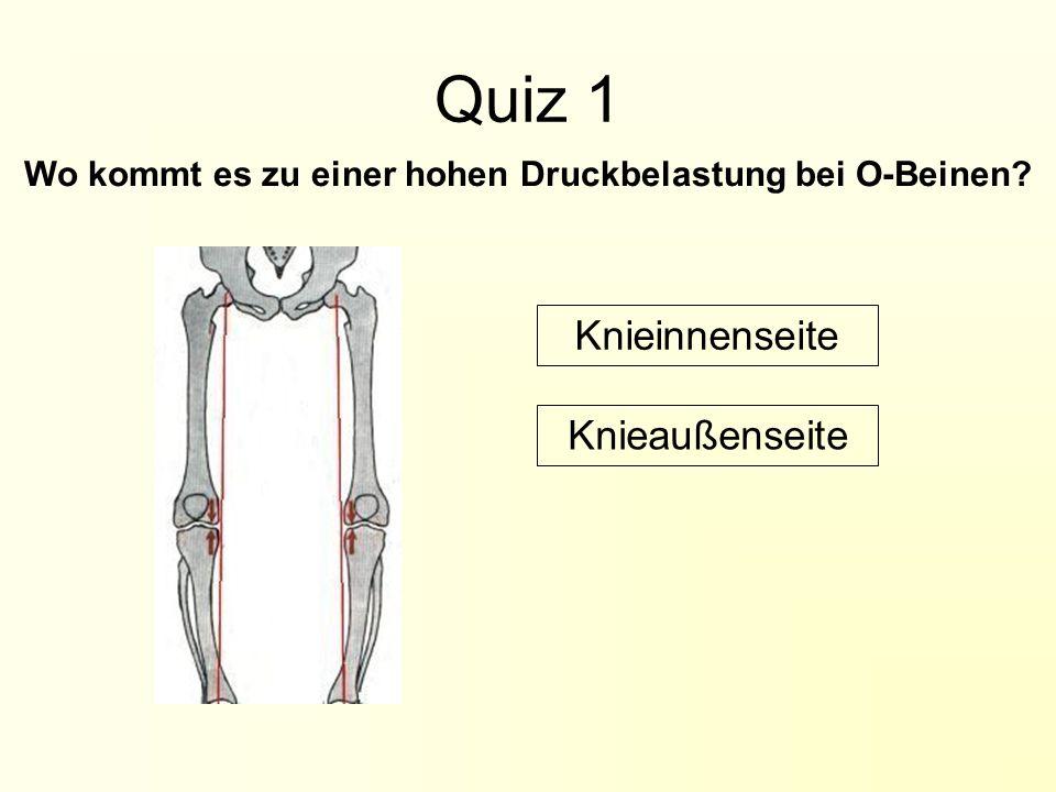 Quiz 1 Wo kommt es zu einer hohen Druckbelastung bei O-Beinen? Knieaußenseite Knieinnenseite