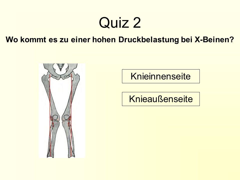 Quiz 2 Wo kommt es zu einer hohen Druckbelastung bei X-Beinen? Knieaußenseite Knieinnenseite