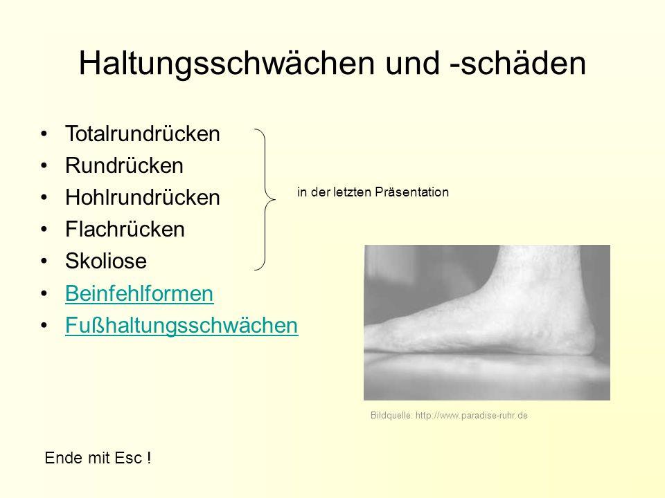 Haltungsschwächen und -schäden Totalrundrücken Rundrücken Hohlrundrücken Flachrücken Skoliose Beinfehlformen Fußhaltungsschwächen in der letzten Präsentation Bildquelle: http://www.paradise-ruhr.de Ende mit Esc !