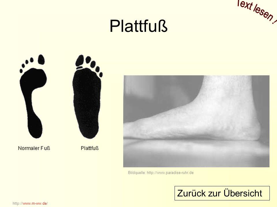 Plattfuß Bildquelle: http://www.paradise-ruhr.de http://www.m-ww.de/ Zurück zur Übersicht