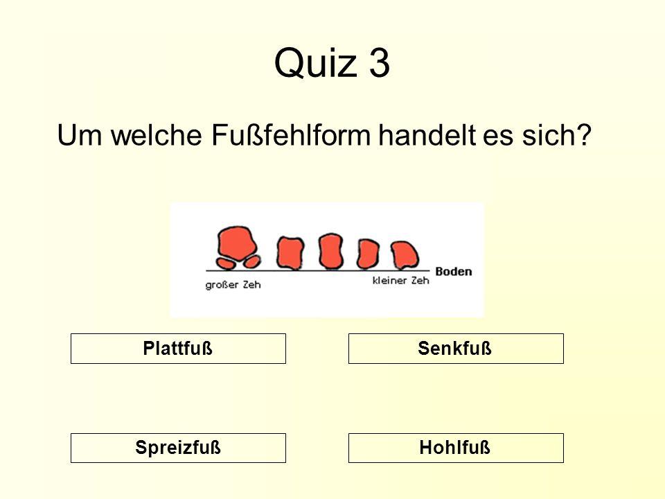 Quiz 3 Um welche Fußfehlform handelt es sich? Hohlfuß SenkfußPlattfuß Spreizfuß