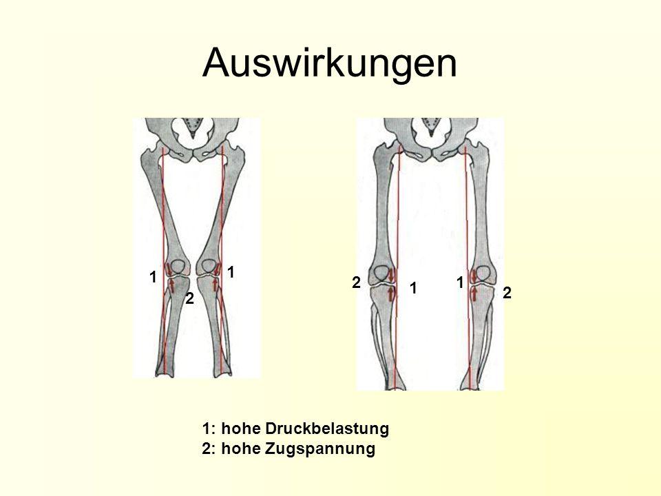Der Fuß Bildquelle: http://www.winkler-osm.ch Ein anatomischer Überblick: