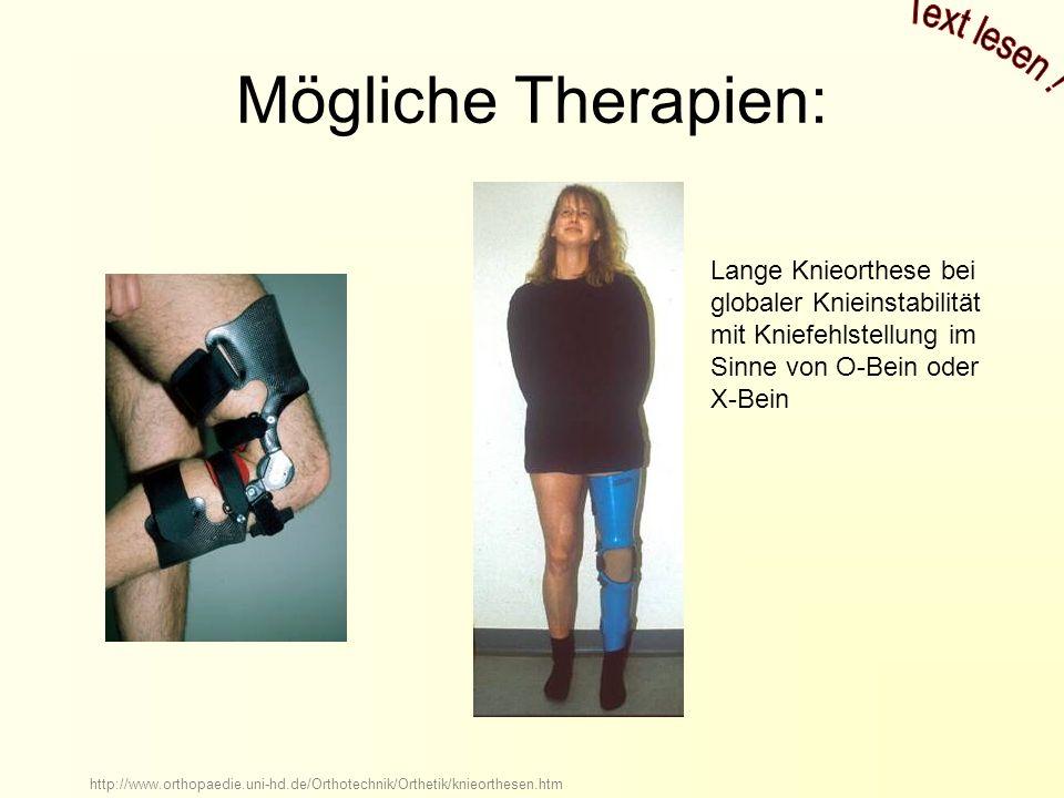 Mögliche Therapien: Lange Knieorthese bei globaler Knieinstabilität mit Kniefehlstellung im Sinne von O-Bein oder X-Bein http://www.orthopaedie.uni-hd.de/Orthotechnik/Orthetik/knieorthesen.htm