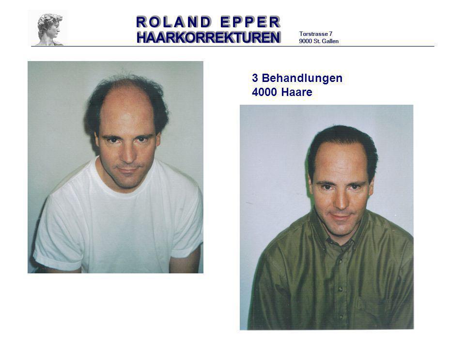 3 Behandlungen 4000 Haare