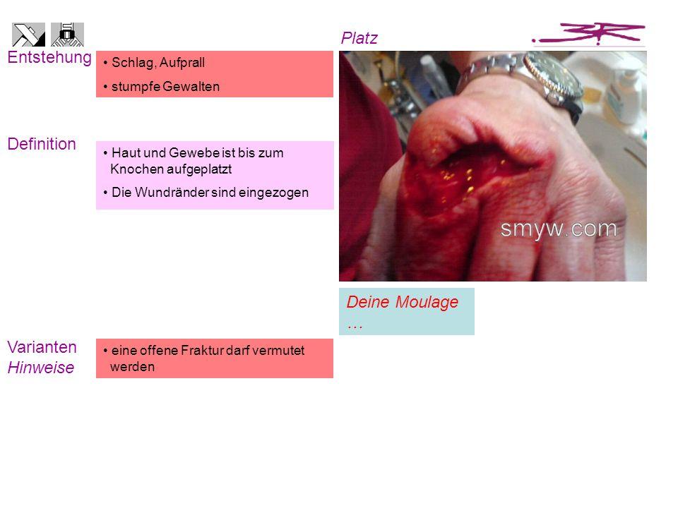 Haut und Gewebe ist bis zum Knochen aufgeplatzt Die Wundränder sind eingezogen Schlag, Aufprall stumpfe Gewalten Entstehung Definition eine offene Fra