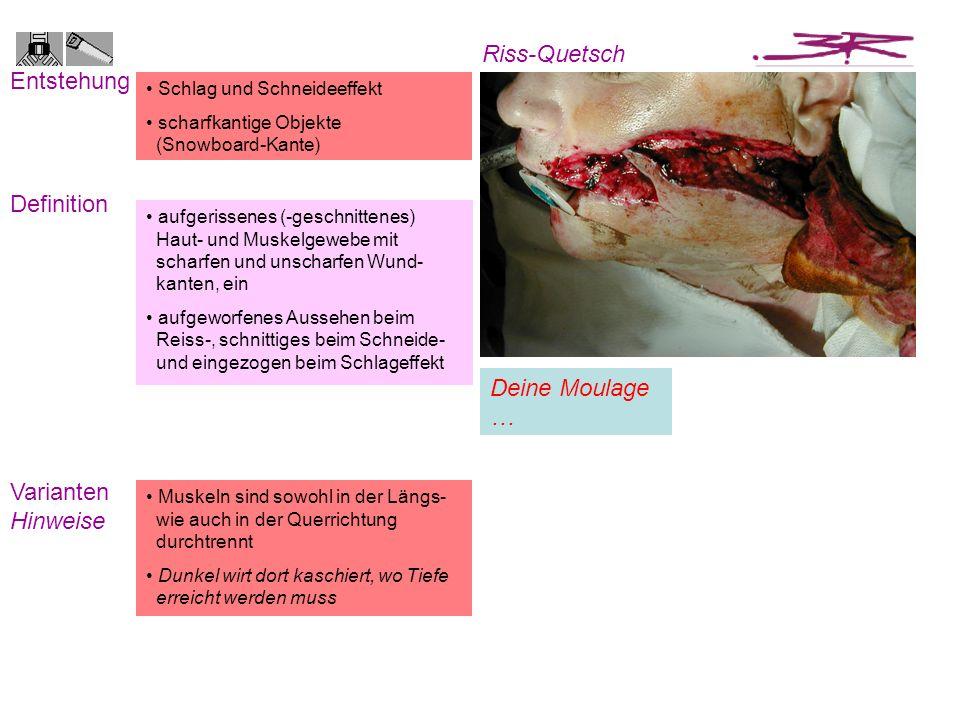 Schlag und Schneideeffekt scharfkantige Objekte (Snowboard-Kante) Entstehung Definition Riss-Quetsch Varianten Hinweise Muskeln sind sowohl in der Län