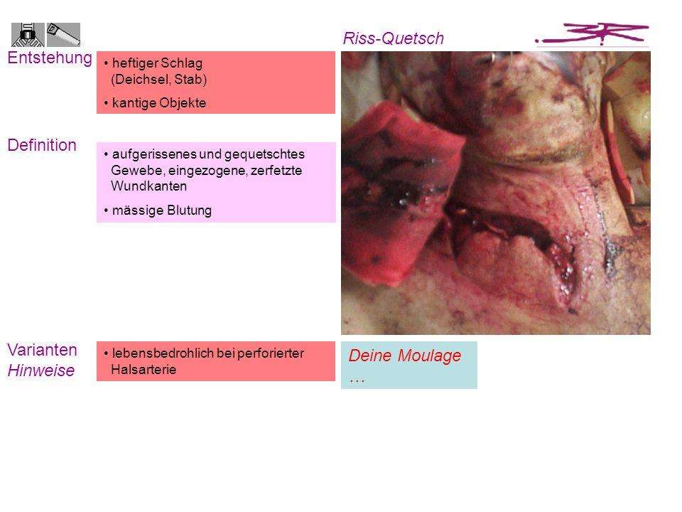 aufgerissenes und gequetschtes Gewebe, eingezogene, zerfetzte Wundkanten mässige Blutung heftiger Schlag (Deichsel, Stab) kantige Objekte Entstehung D