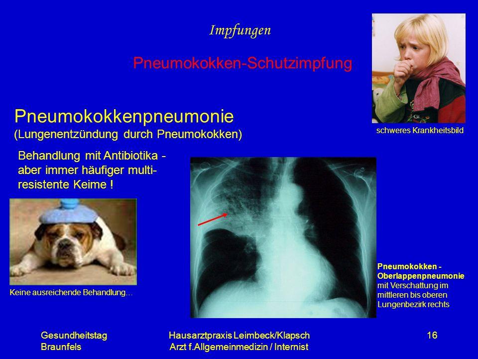 Gesundheitstag Braunfels Hausarztpraxis Leimbeck/Klapsch Arzt f.Allgemeinmedizin / Internist 16 Pneumokokkenpneumonie (Lungenentzündung durch Pneumoko