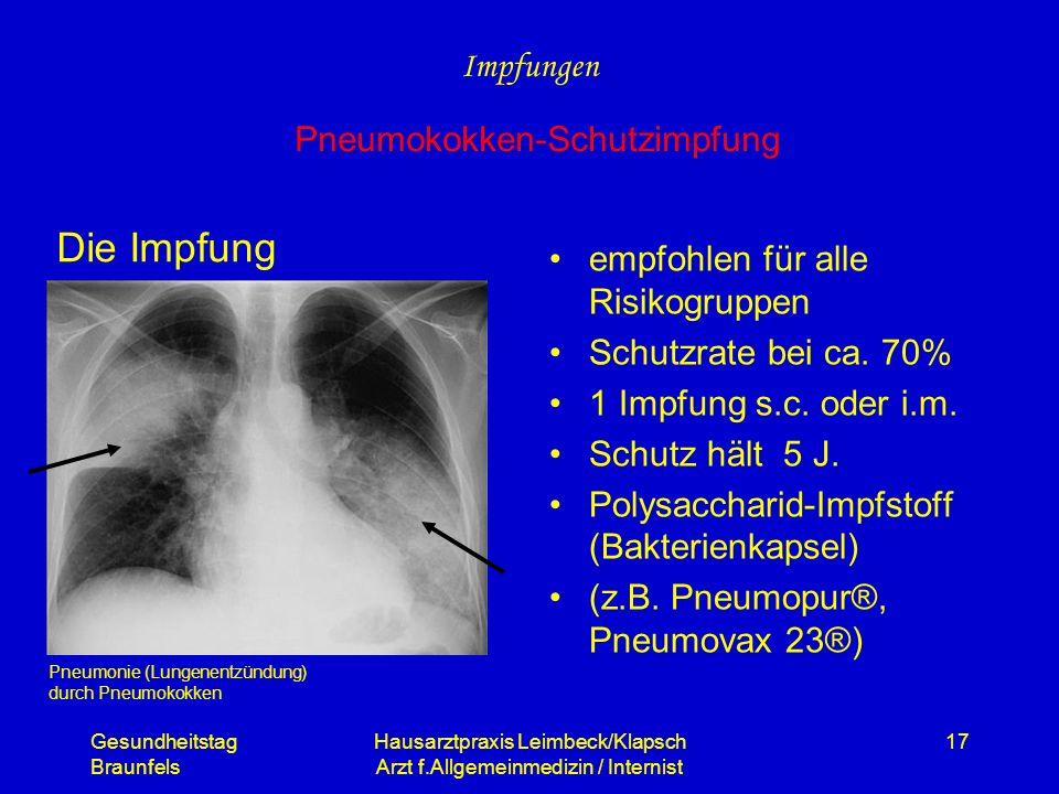 Gesundheitstag Braunfels Hausarztpraxis Leimbeck/Klapsch Arzt f.Allgemeinmedizin / Internist 17 Die Impfung empfohlen für alle Risikogruppen Schutzrat