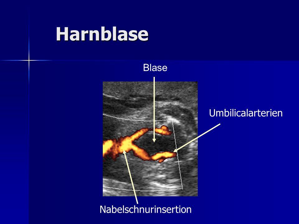 Harnblase Blase Nabelschnurinsertion Umbilicalarterien