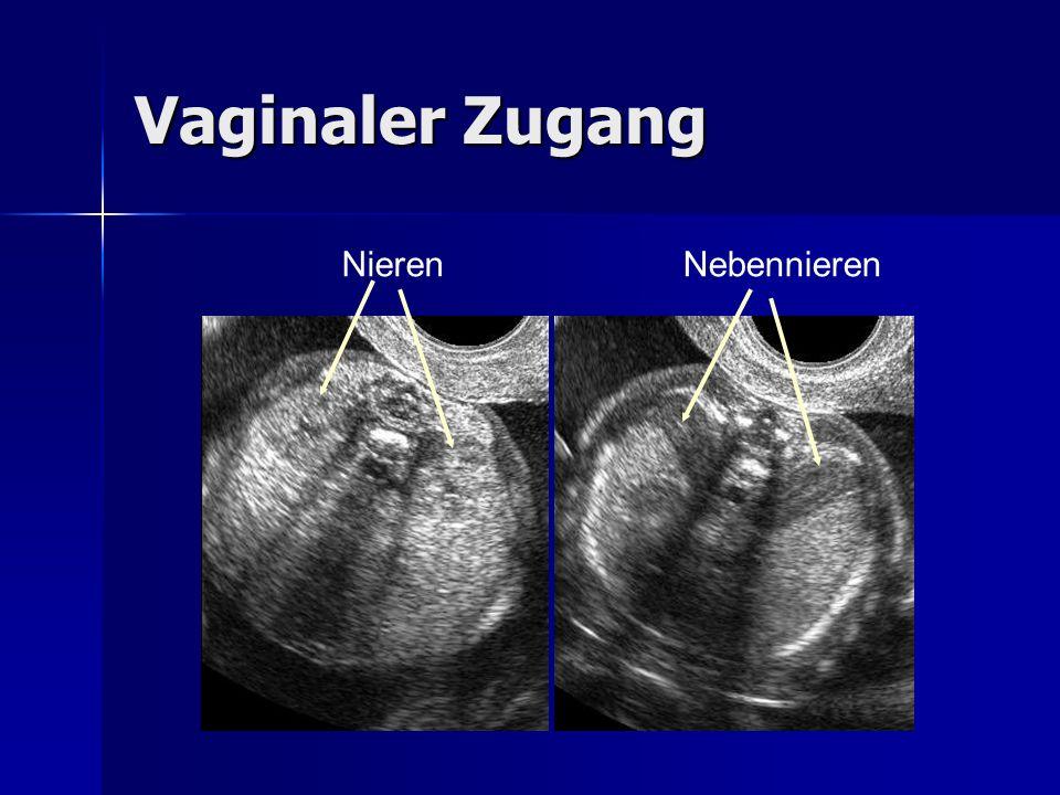 Vaginaler Zugang NierenNebennieren