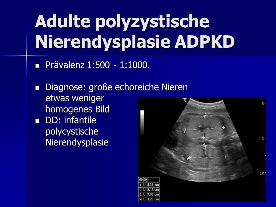 Adulte polyzystische Nierendysplasie ADPKD Prävalenz 1:500 - 1:1000. Prävalenz 1:500 - 1:1000. Diagnose: große echoreiche Nieren Diagnose: große echor
