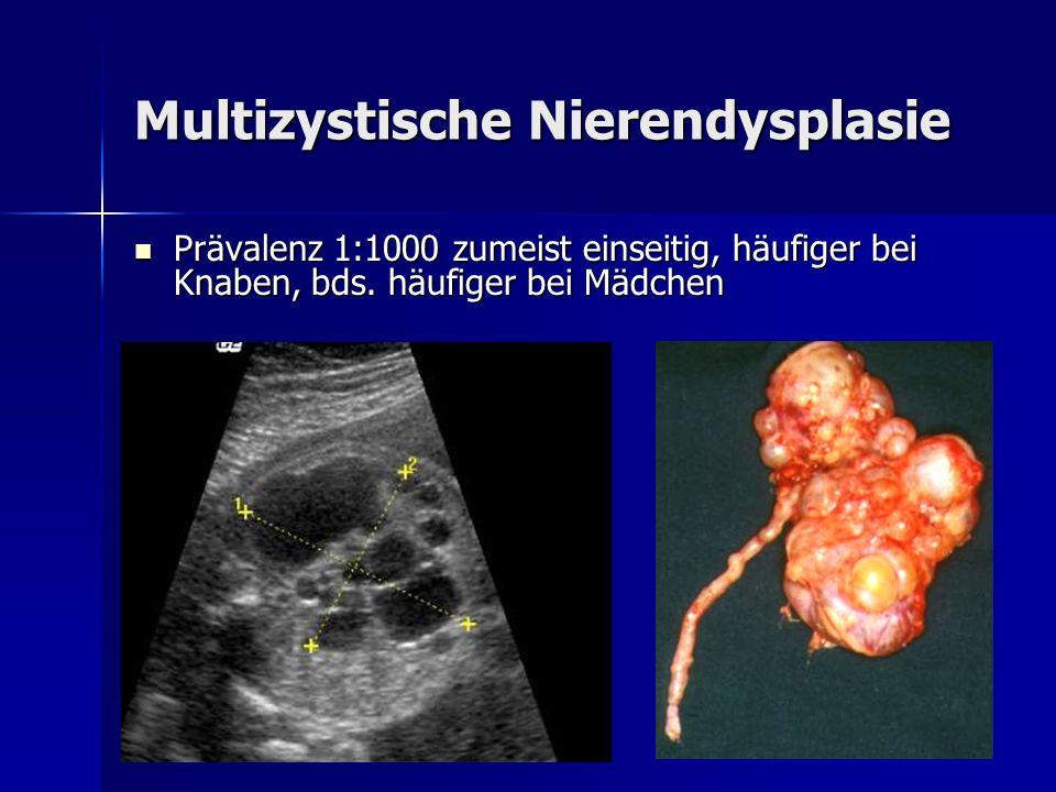 Multizystische Nierendysplasie Prävalenz 1:1000 zumeist einseitig, häufiger bei Knaben, bds. häufiger bei Mädchen Prävalenz 1:1000 zumeist einseitig,