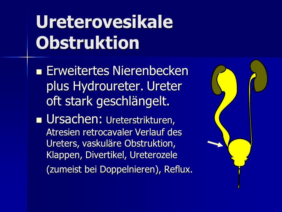 Ureterovesikale Obstruktion Erweitertes Nierenbecken plus Hydroureter. Ureter oft stark geschlängelt. Erweitertes Nierenbecken plus Hydroureter. Urete