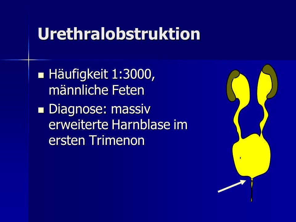 Urethralobstruktion Häufigkeit 1:3000, männliche Feten Häufigkeit 1:3000, männliche Feten Diagnose: massiv erweiterte Harnblase im ersten Trimenon Dia