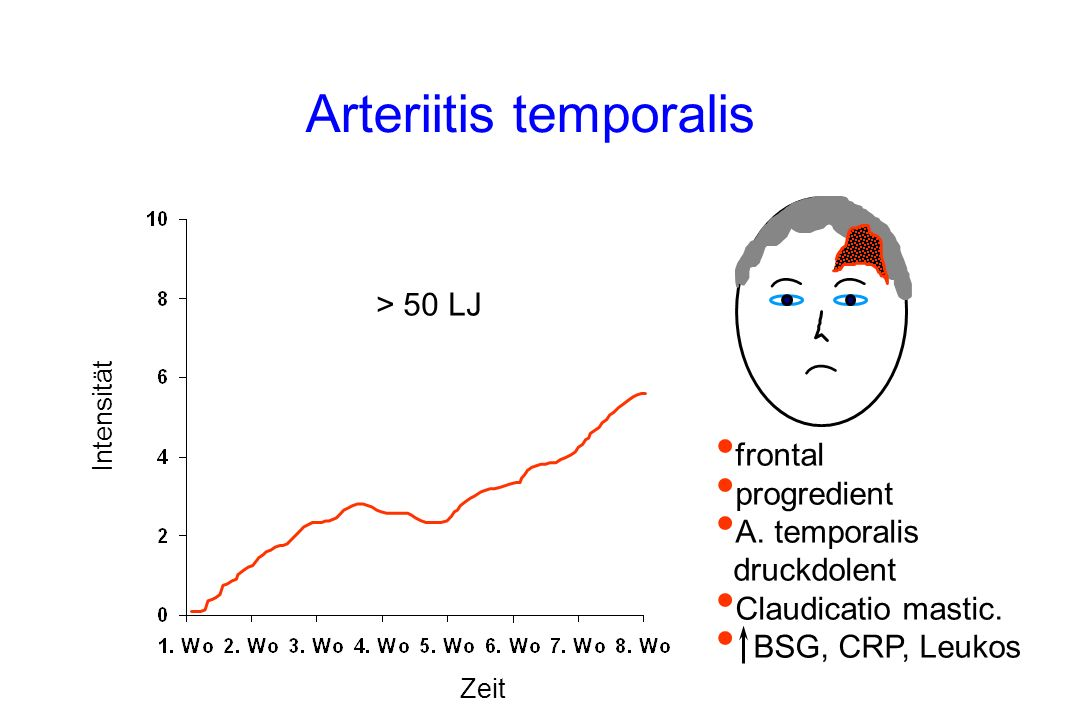 Arteriitis temporalis Intensität Zeit frontal progredient A.