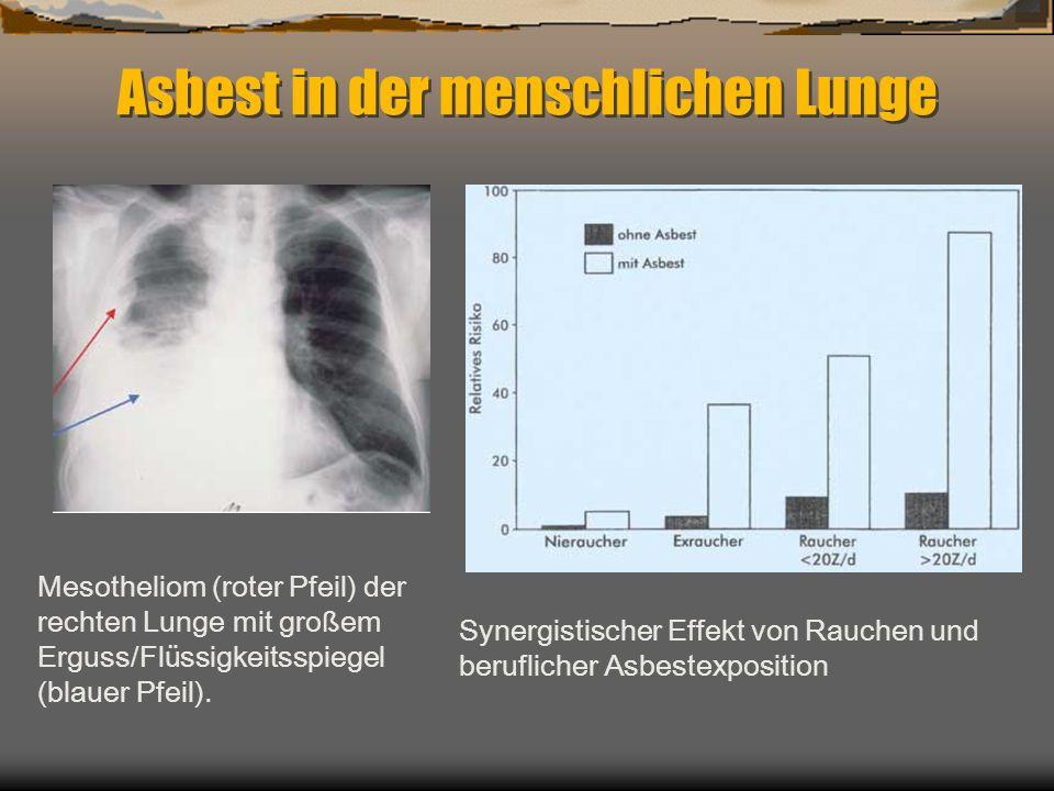 Asbest in der menschlichen Lunge Synergistischer Effekt von Rauchen und beruflicher Asbestexposition Mesotheliom (roter Pfeil) der rechten Lunge mit g
