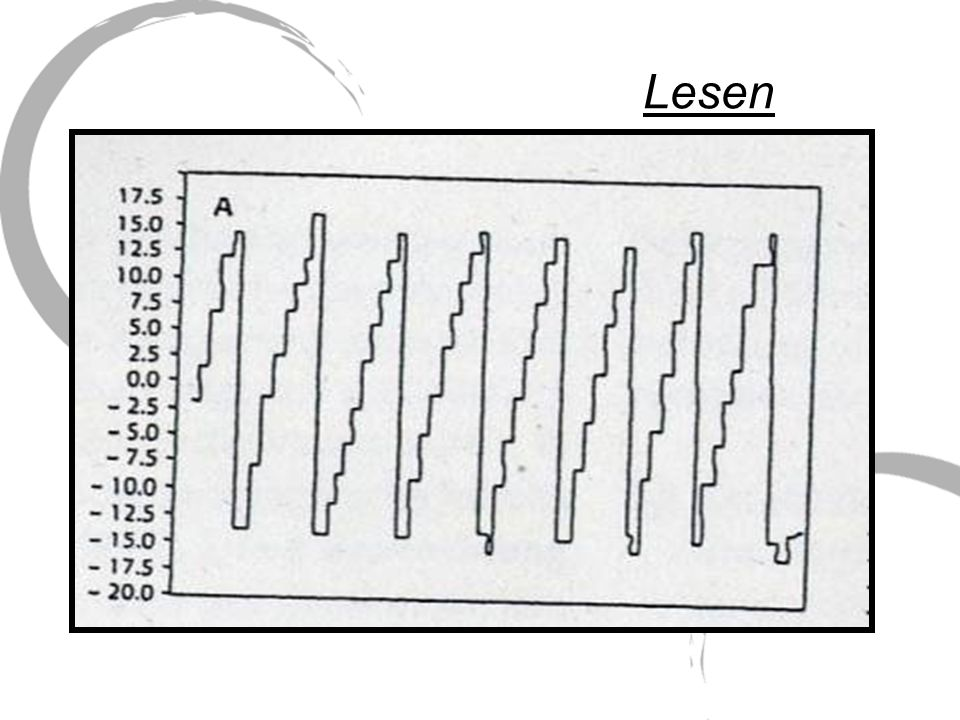 deutlicher wird die Kompensationsfähigkeit des visuellen Systems am Beispiel des Lesens es wird ein Gesichtsfeldausschnitt von etwa 8° benötigt dieses