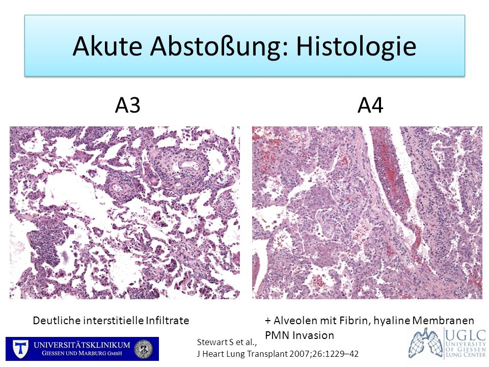Akute Abstoßung: Histologie Stewart S et al., J Heart Lung Transplant 2007;26:1229–42 A3A4 Deutliche interstitielle Infiltrate+ Alveolen mit Fibrin, h