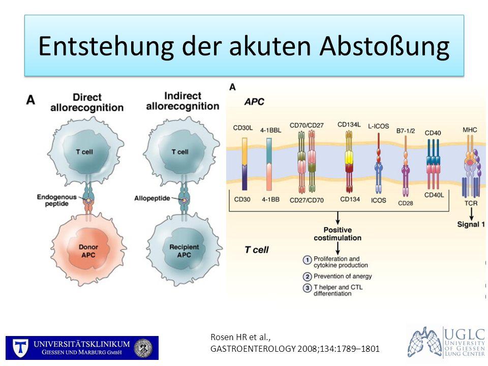 Akute Abstoßung: Histologie Stewart S et al., J Heart Lung Transplant 2007;26:1229–42 A1A2 Perivaskuläre mononukleäre Infiltrate +Perivaskuläre mononukleäre Infiltrate +++