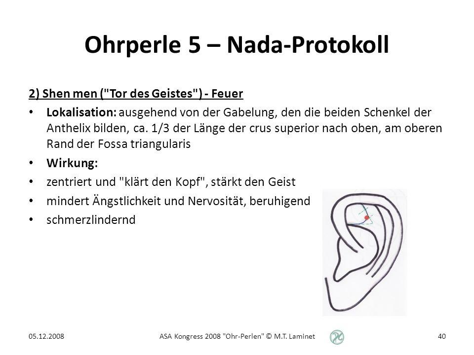 Ohrperle 5 – Nada-Protokoll 2) Shen men ( Tor des Geistes ) - Feuer Lokalisation: ausgehend von der Gabelung, den die beiden Schenkel der Anthelix bilden, ca.