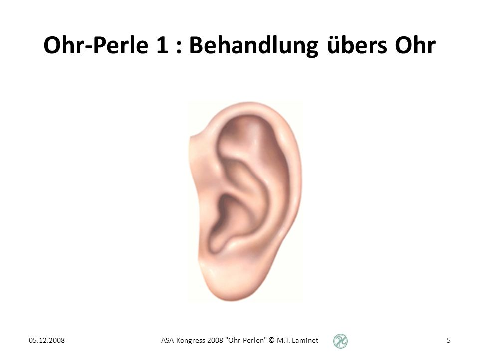 Ohr-Perle 1 : Behandlung übers Ohr 05.12.20085ASA Kongress 2008 Ohr-Perlen © M.T. Laminet