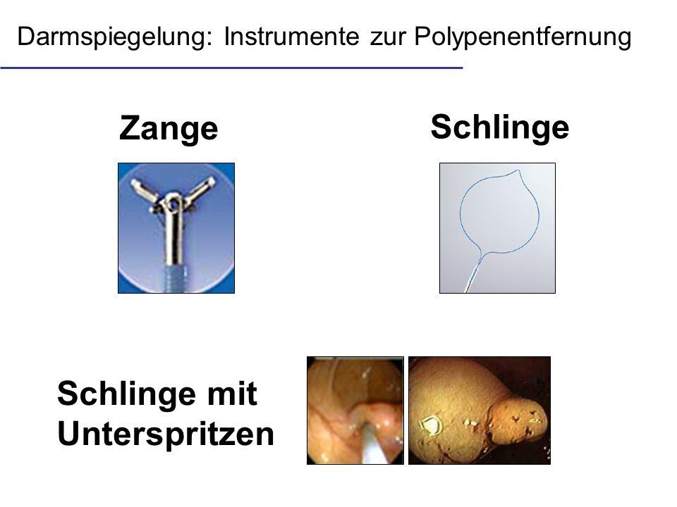 Darmspiegelung: Instrumente zur Polypenentfernung Schlinge mit Unterspritzen Schlinge Zange