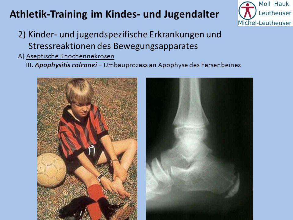 Athletik-Training im Kindes- und Jugendalter 2) Kinder- und jugendspezifische Erkrankungen und Stressreaktionen des Bewegungsapparates A) Aseptische K