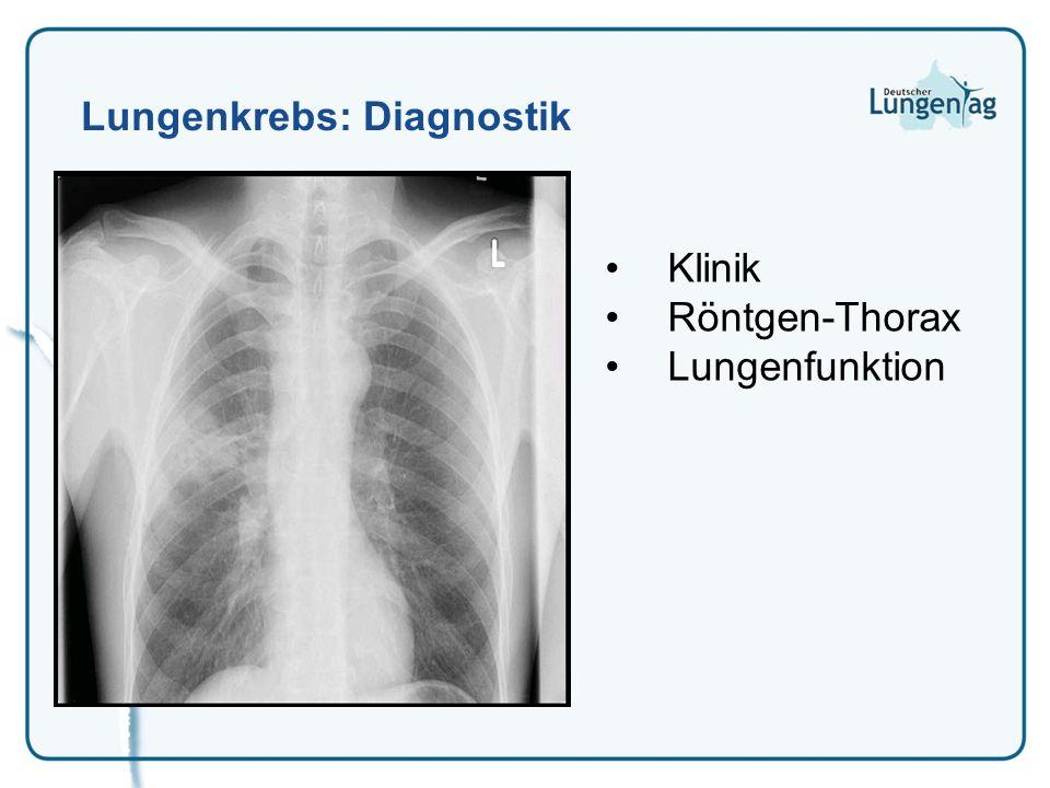 Lungenkrebs: Diagnostik Klinik Röntgen-Thorax Lungenfunktion