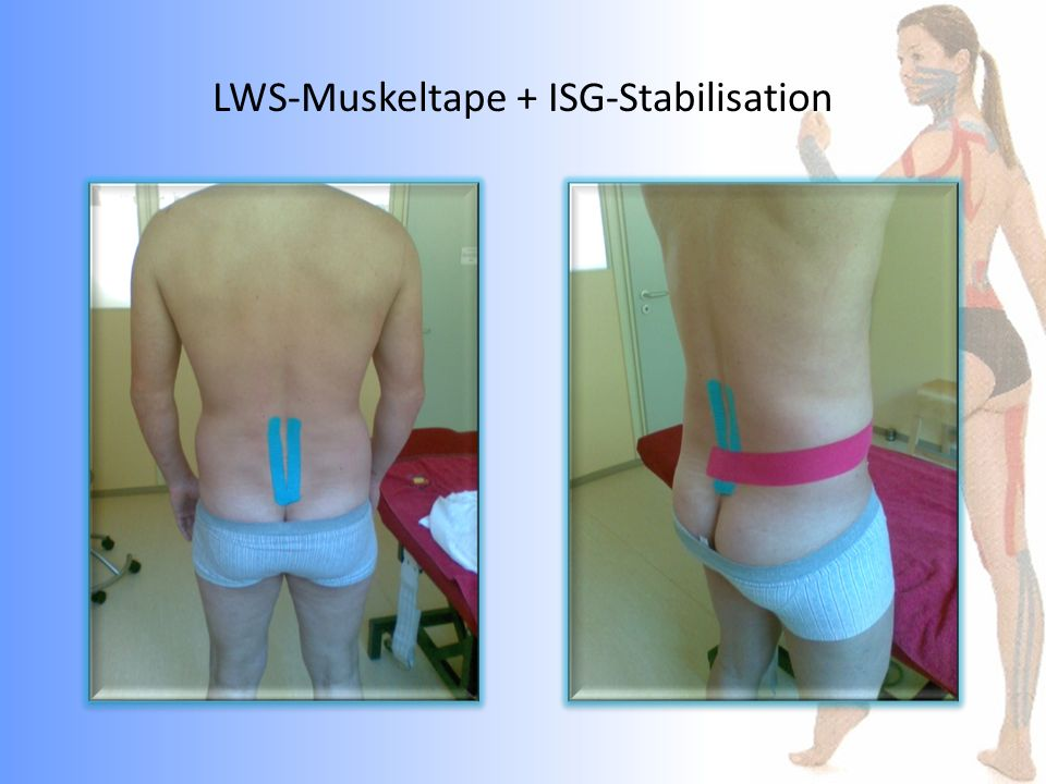 LWS-Muskeltape + ISG-Stabilisation