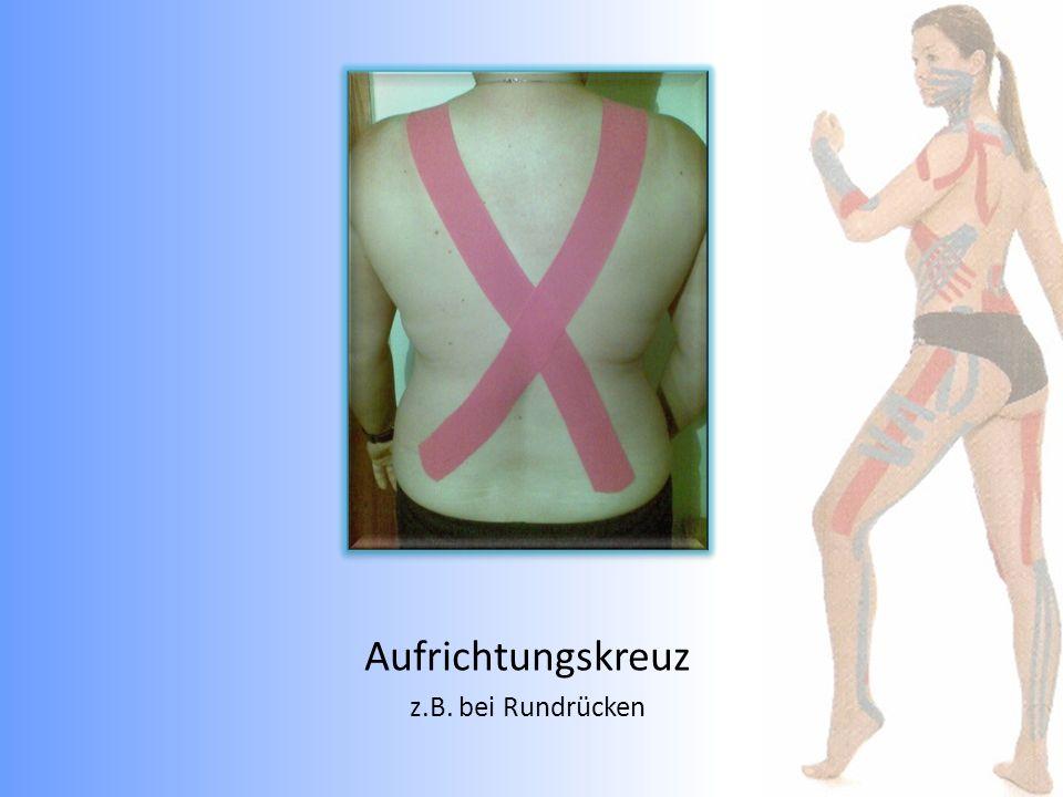 z.B. Läuferwade mit Achilessehnenschmerzen