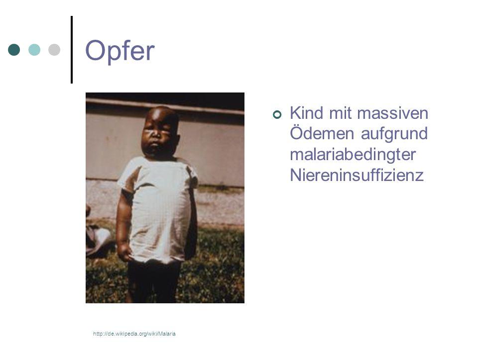 Opfer Kind mit massiven Ödemen aufgrund malariabedingter Niereninsuffizienz http://de.wikipedia.org/wiki/Malaria