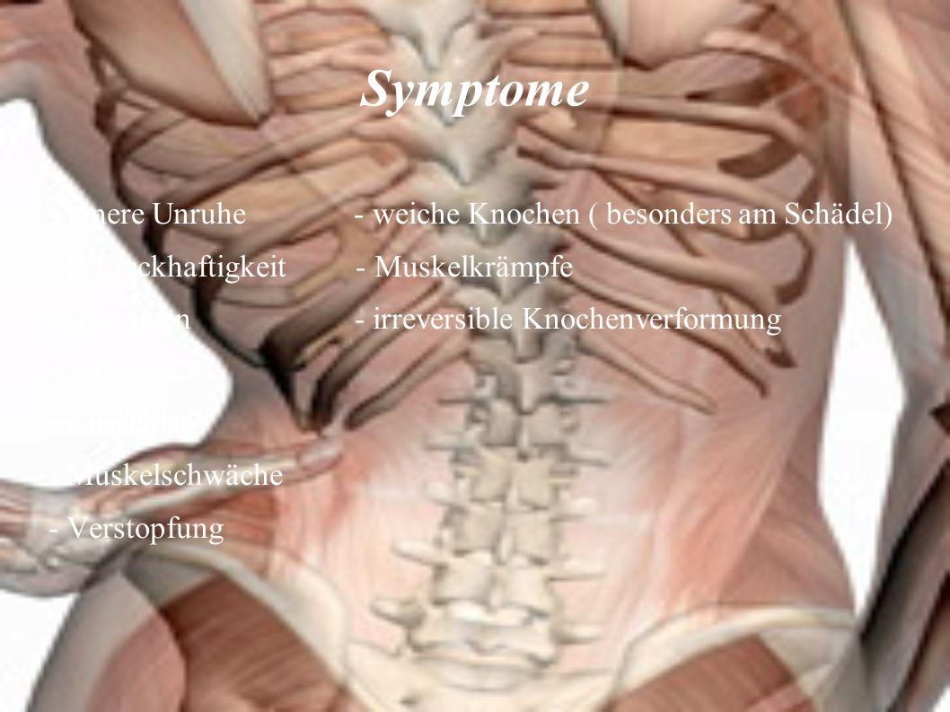 Ursachen&Folgen - Vitamin D Mangel - zu wenig Sonnenlicht - Eiweißmangelernährung - Fehlende Nährstoffaufnahme im Magen-Darm-Trakt Die Folge: Knochen können nicht richtig Verkalken, werden weich und biegen sich bei Belastung.
