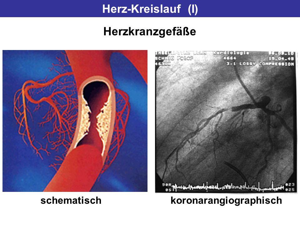 Herz-Kreislauf (I) Herzkranzgefäße schematischkoronarangiographisch