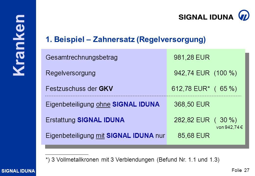 SIGNAL IDUNA Folie 27 Kranken 1. Beispiel – Zahnersatz (Regelversorgung) Gesamtrechnungsbetrag981,28 EUR Regelversorgung942,74 EUR (100 %) Festzuschus