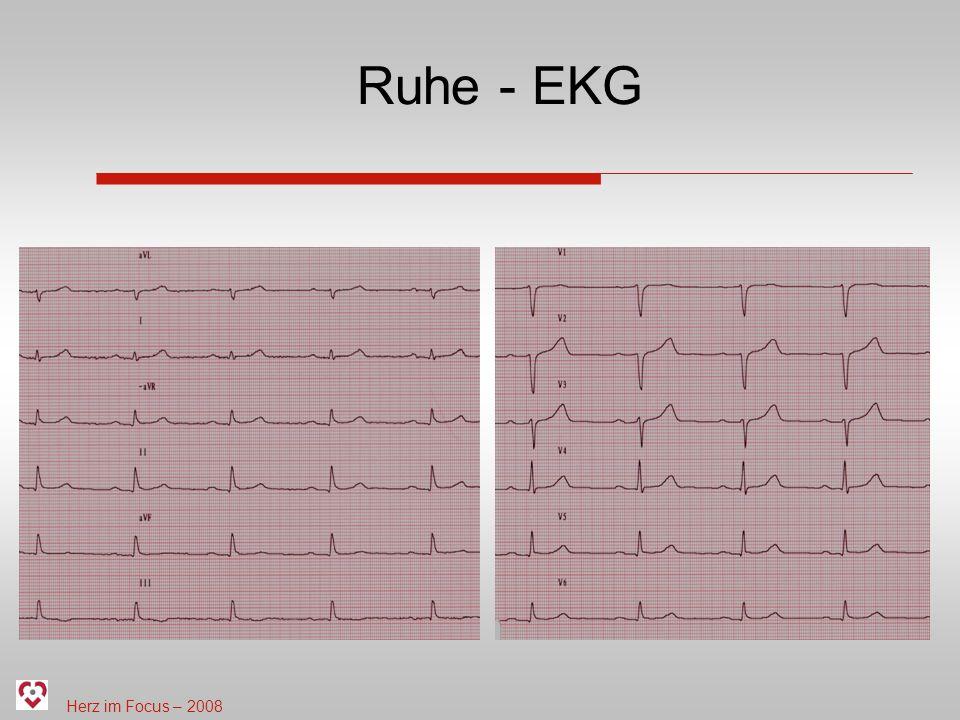 Herz im Focus – 2008 Ruhe - EKG