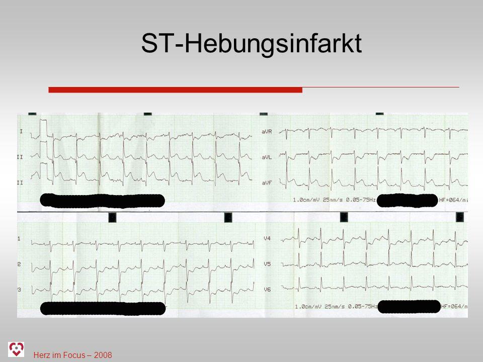 Herz im Focus – 2008 ST-Hebungsinfarkt